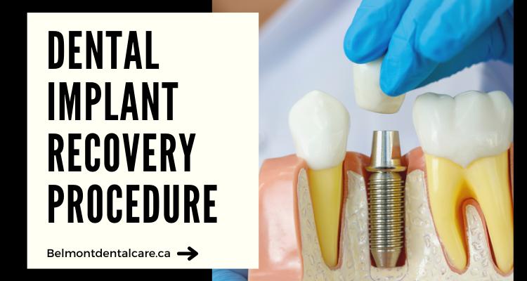 dental-implants-recovery-procedure